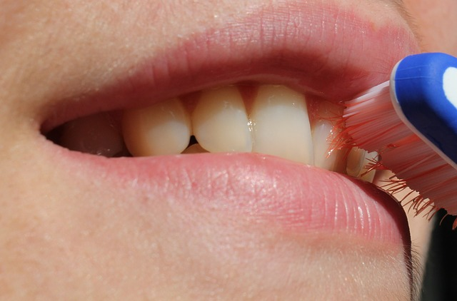 フランス流、歯のホワイトニング